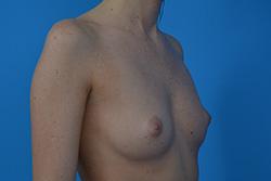 Powiększenie piersi - technika dual plane 2