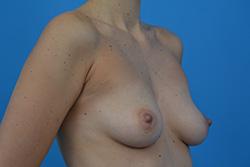 Powiększenie piersi - technika dual plane 3