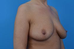 Powiększenie piersi - technika dual plane