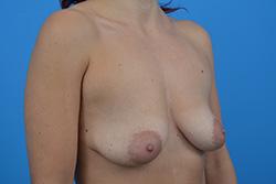 Powiększenie-piersi - technika multi plane piersi opadające