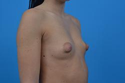 Powiększenie-piersi - technika multi plane piersi tubularne