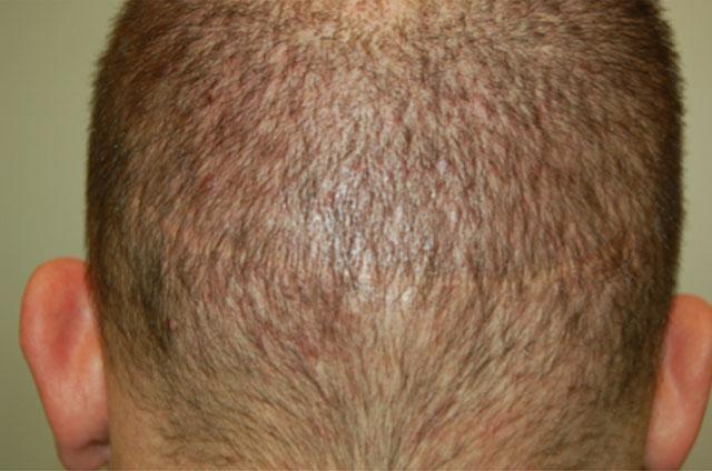 Fot.2b Trzy miesiące po korekcji blizny w okolicy potylicznej przy użyciu metody FUE