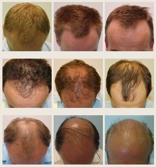 dieta na wypadanie włosów u mężczyzn