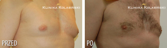 Pictures before and after: Gynaecomastia