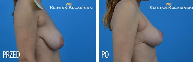 Podniesienie piersi - zdjęcia przed i po