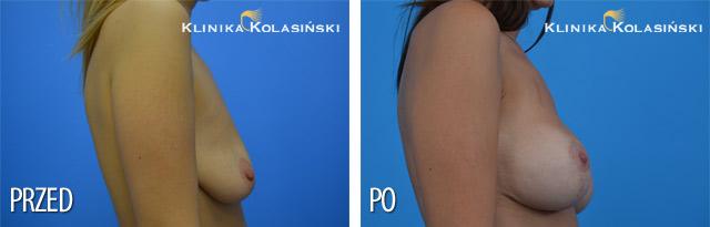 Podniesienie piersi sposobem Lejour z wszczepieniem implantów okrągłych o poj. 310 ml (Allergan) pod powięź mięsnia piersiowego większego.