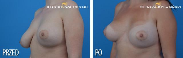Zdjęcia przed i po - Podniesienie piersi