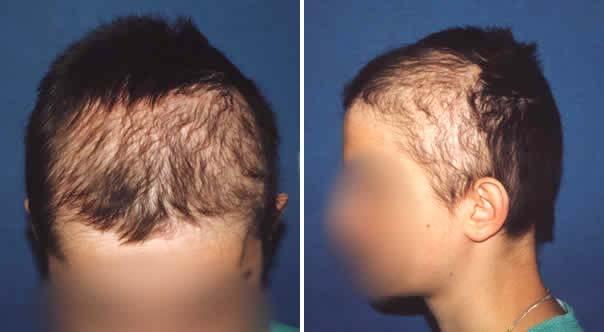 witaminy na wypadanie włosów u mężczyzn