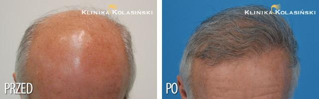 Przeszczep włosów - zdjęcia przed i po - Liczba przeszczepionych zespołów mieszkowych: 4800
