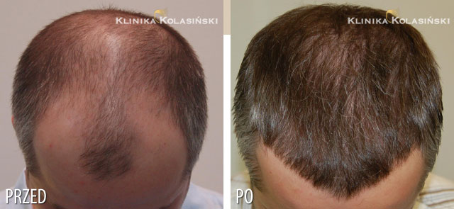 Pictures before and after: hair transplant