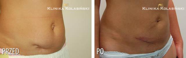 Zdjęcia przed i po: abdominoplastyka
