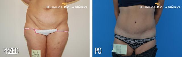 Bilder vorher und nachher: Abdominoplastik
