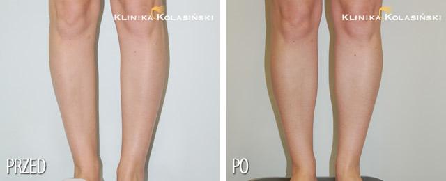 Korekcja łydek - zdjęcia przed i po
