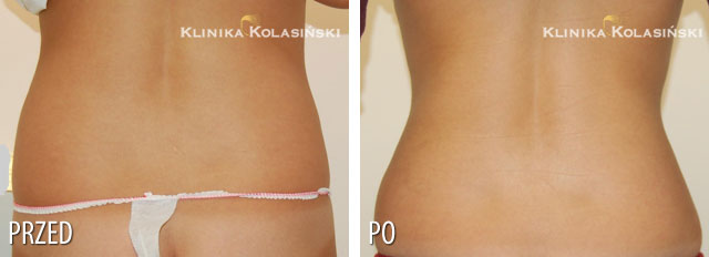 Pictures before and after: Liposuction