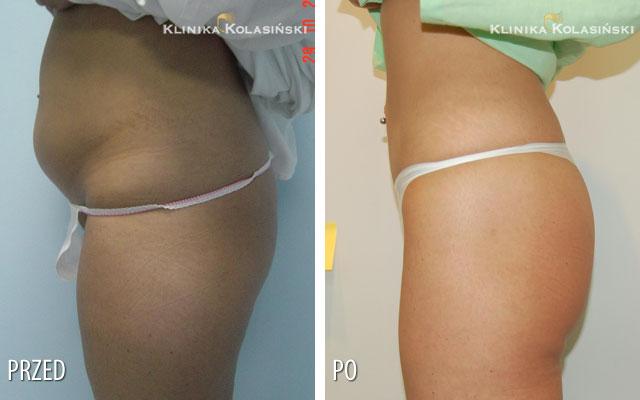 Bilder vorher und nachher: Liposuction