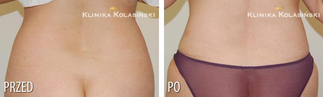 Zdjęcia przed i po: Liposukcja