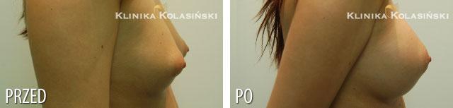 Zdjęcia przed i po: Powiększanie piersi - implanty anatomiczne FF 310