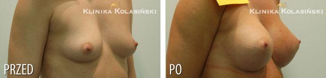 Zdjęcia przed i po: Powiększanie piersi - implanty anatomiczne FF 360