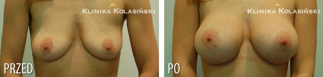 Zdjęcia przed i po: Powiększanie piersi - implanty anatomiczne FX 320