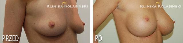 Zdjęcia przed i po: Powiększanie piersi - implanty anatomiczne FX 360