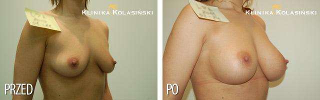 Powiększanie Piersi - zdjęcia przed i po - Implanty anatomiczne FX 360
