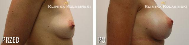 Zdjęcia przed i po: Powiększanie piersi - implanty anatomiczne FX 410