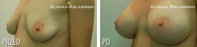 Zdjęcia przed i po: Powiększanie piersi fx410g