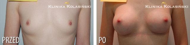 Zdjęcia przed i po: Powiększanie piersi - implanty anatomiczne MF 225