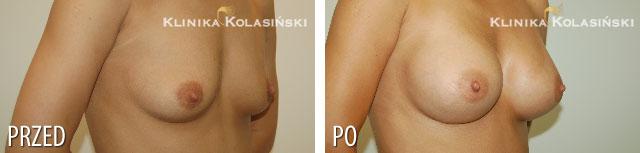 Zdjęcia przed i po: Powiększanie piersi - implanty anatomiczne MM 320