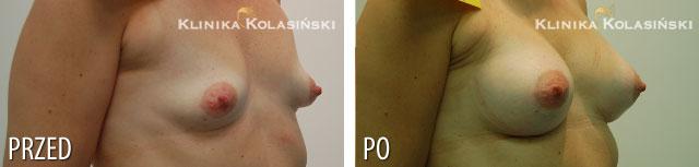 Zdjęcia przed i po: Powiększanie piersi - implanty anatomiczne MX 320