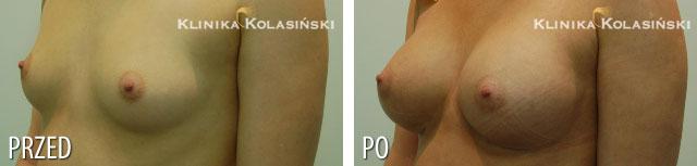 Zdjęcia przed i po: Powiększanie piersi - implanty anatomiczne MX 325
