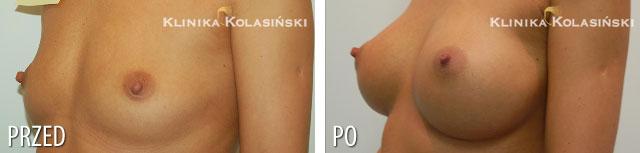 Zdjęcia przed i po: Powiększanie piersi - implanty anatomiczne 325