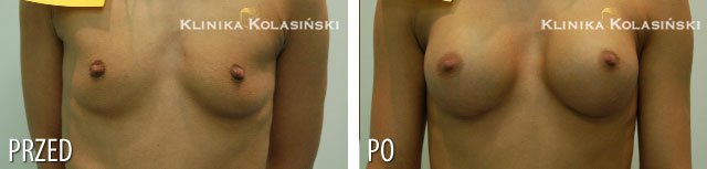 Zdjęcia przed i po: Powiększanie piersi - implanty okrągłe 250ml