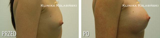 Zdjęcia przed i po: Powiększanie piersi - implanty okrągłe 275ml