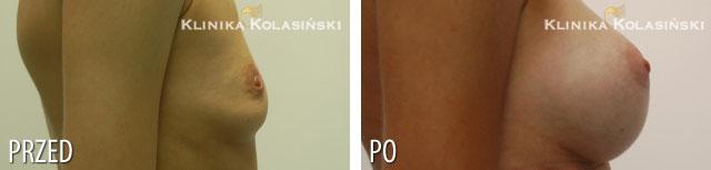 Zdjęcia przed i po: Powiększanie piersi - implanty okrągłe 280ml