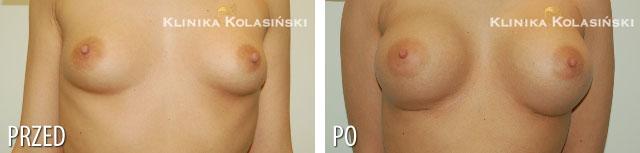 Zdjęcia przed i po: Powiększanie piersi - implanty okrągłe 375ml