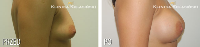 Zdjęcia przed i po: Powiększanie piersi - implanty okrągłe lewa: 260ml prawa: 280ml