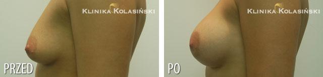 Zdjęcia przed i po: Powiększanie piersi okrL260ml-P280ml