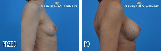 Wszczepienie pod mięsień piersiowy większy i gruczoł piersiowy protez okrągłych o poj. 300 ml (Mentor) techniką Dual Plane I.