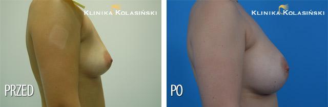 Wszczepienie protez silikonowych, teksturowanych o poj. 260 cc pod mięsień piersiowy większy.