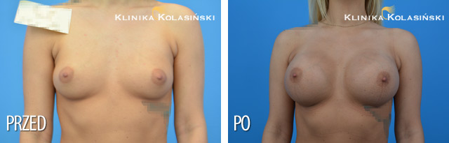 Wszczepienie pod mięsień piersiowy większy i gruczoł piersiowy protez okrągłych o poj. 300 ml (Mentor) techniką Dual Plane I
