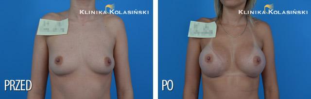 powiekszanie-piersi-zdjecia-przed-i-po-0055.jpg