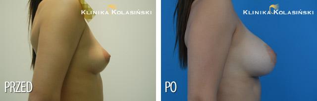 INAMED protezy konturowe; prawa 410MX 370g, lewa410MM 320g (mięsień i gruczoł)