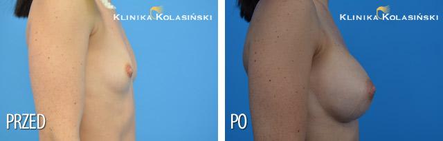 Wszczepienie pod mięsień piersiowy większy i gruczoł piersiowy protez anatomicznych: po str prawej MF 335, po str lewej MM 320 (Allergan) techniką Dual Plane I