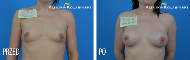 Wszczepienie protez pod mięsień piersiowy większy i gruczoł piersiowy protez anatomicznych MF 335 mg techniką Dual plane 2