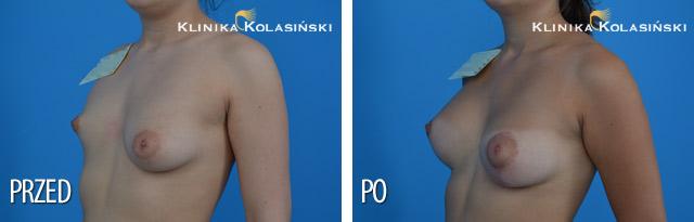 Powiększenie piersi prawej pod mięsień piersiowy większy protezą anatomiczne MX 325 firmy Allergan, dual plane I. Podniesienie i powiększenie piersi lewej po mięsień piersiowy większy protezą anatomiczną ML 125 firmy Allergan, dual plane I