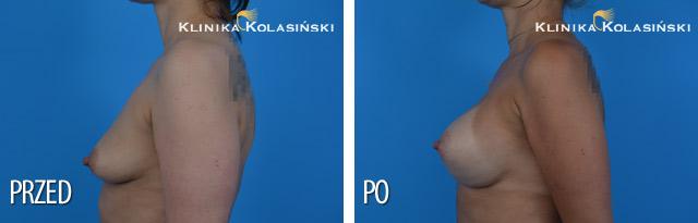 Wszczepienie pod mięsień piersiowy większy i gruczoł piersiowy protez anatomicznych CPG 322 o pojemności 420 cc firmy Mentor techniką Dual plane 3