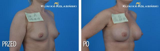Wszczepienie pod mięsień piersiowy większy i gruczoł piersiowy protez anatomicznych CPG 321 o pojemności 315 g techniką Dual Plane I