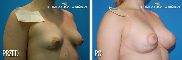 Plastyka piersi metodą Del Jero, wszczepienie pod powięź mięśnia piersiowego większego implantów anatomicznych MF 335g