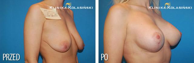 Zabieg podniesienie piersi plus powiększenie implanty okrągłe 275 cc Mentor